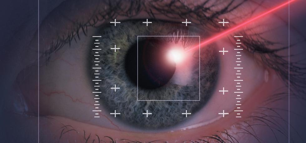 laser.miopia