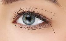 <h1>Chirurgia oftalmoplastica</h1>